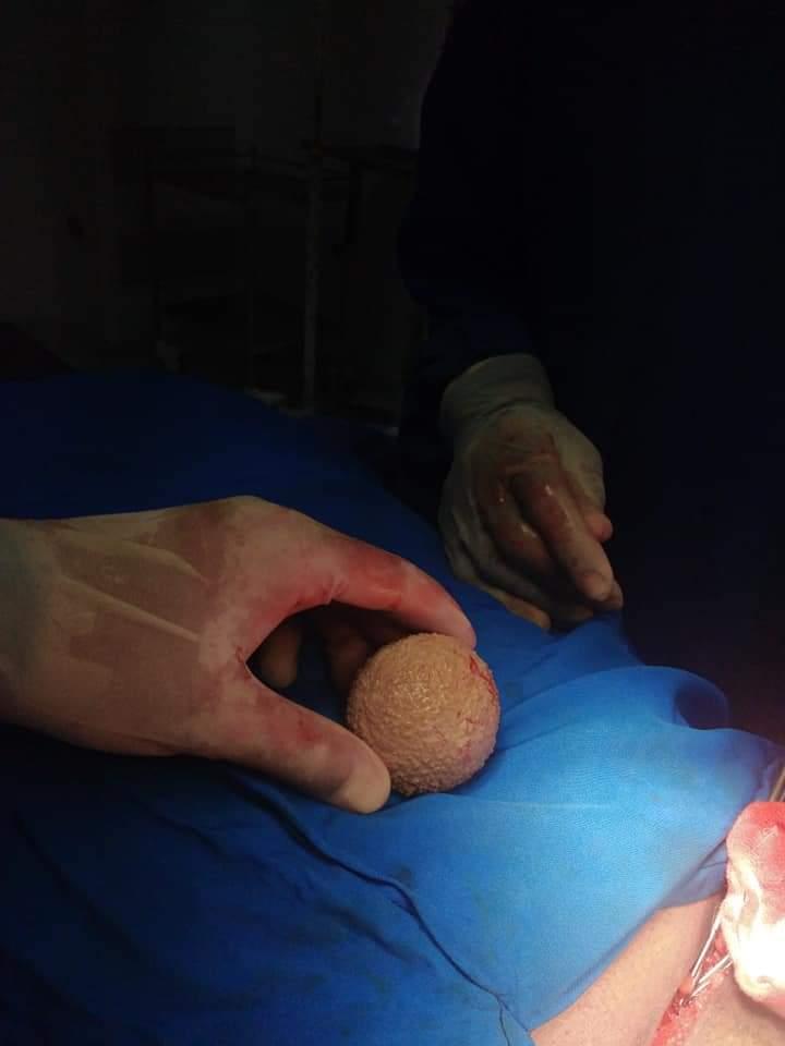 استخراج حصوة من مثانة مريض بحجم كرة التنس (6)