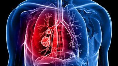 4 أعراض غير واضحة لسرطان الرئة